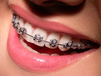 aparelhos_ortodonticos