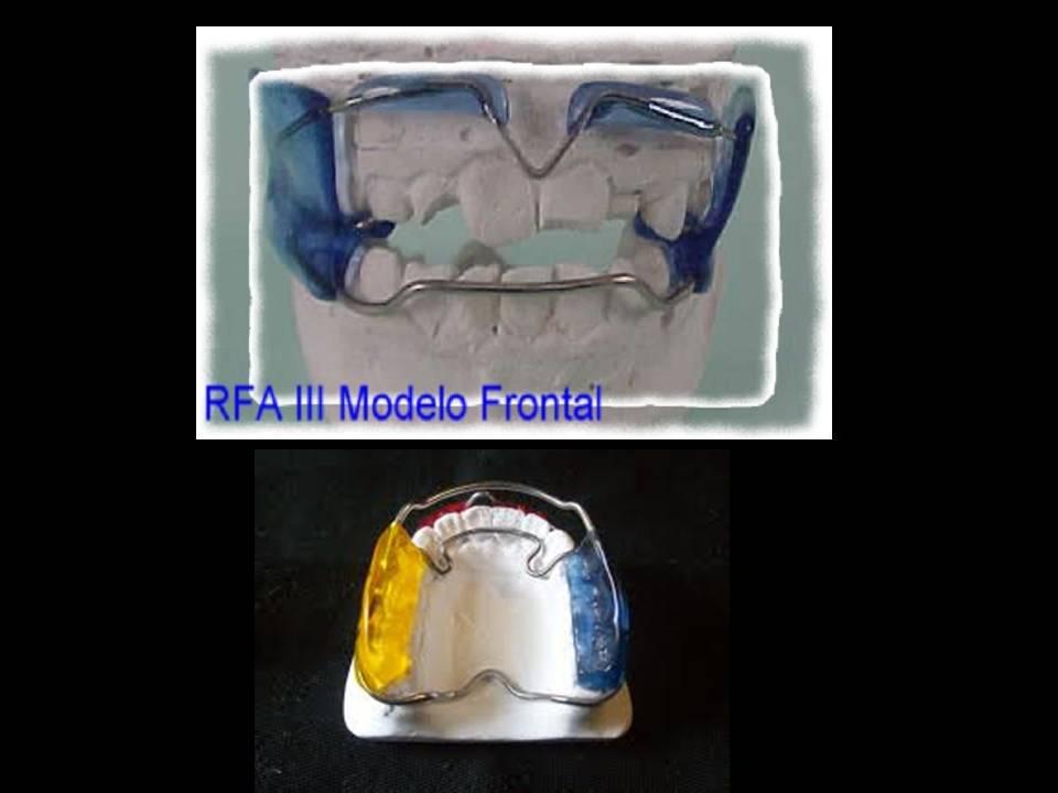RFA III
